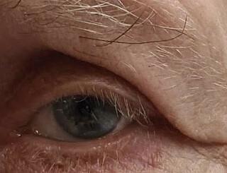 Image: «Måtte løfte øyelokket med fingrene når han snakket»