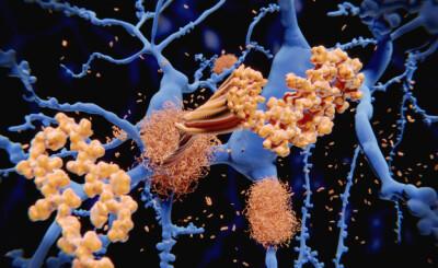 Image: Mulig nytt medikament mot Alzheimer