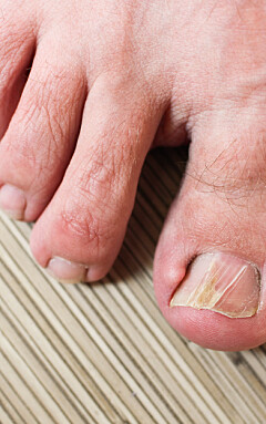 Image: Lege: Effektivt mot inngrodde tånegler