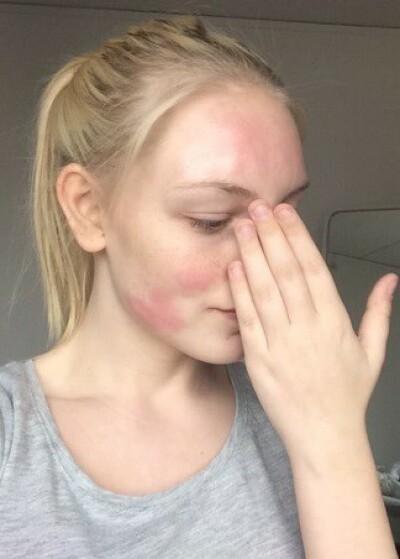 Image: Rosacea: Effektiv behandling hjalp Hanna