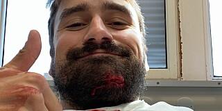 Image: Kong Halvor i blodig ulykke