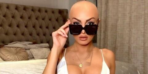 Image: Realitystjerna barberte bort alt håret