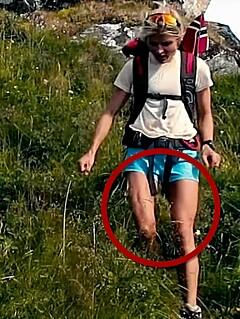 Image: Hadde litervis med væske i beina