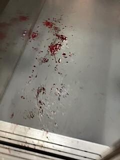 Image: Angrep uskyldig uten forvarsel
