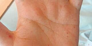 Image: Mystiske symptomer var rottebittfeber